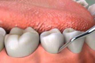 Teeth Extractions In Granada Hills Get Rid Of Tooth Pain