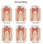 How Long Do Composite Fillings Last?